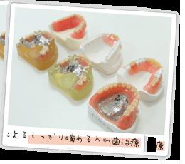 しっかり噛める入れ歯治療