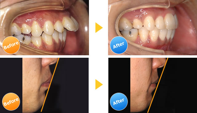 上顎前突の症例写真
