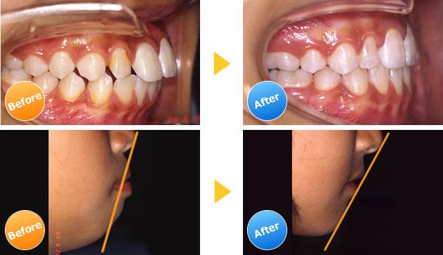 上下顎前突の症例写真