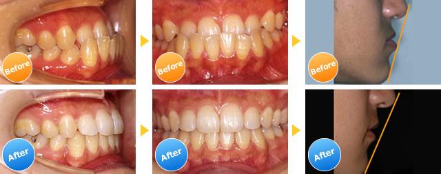 下顎前突の症例写真