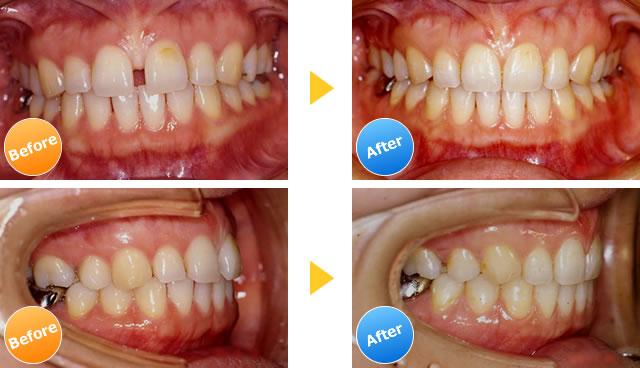 空隙歯列の症例写真