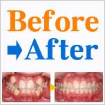 歯並び別Before&After写真