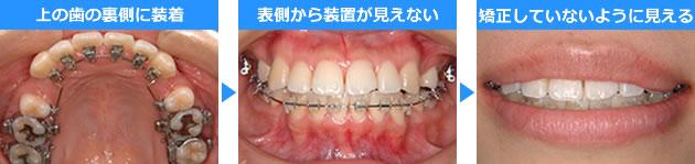 歯の裏側に矯正器具を装着した治療写真
